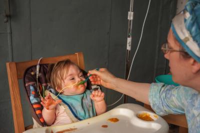 nasogastric tube; tube feeding; tube dependency, tube weaning, tubies |www.livelyeaters.com.au|